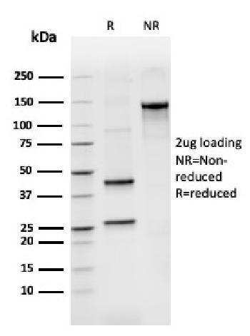Anti-BCL2-like 2 Monoclonal Antibody(Clone: CPTC-BCL2L2-2)