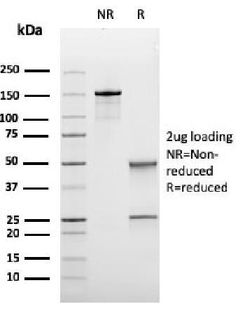 Anti-Bcl-6 (Follicular Lymphoma Marker) Monoclonal Antibody(Clone: rBCL6/1475)