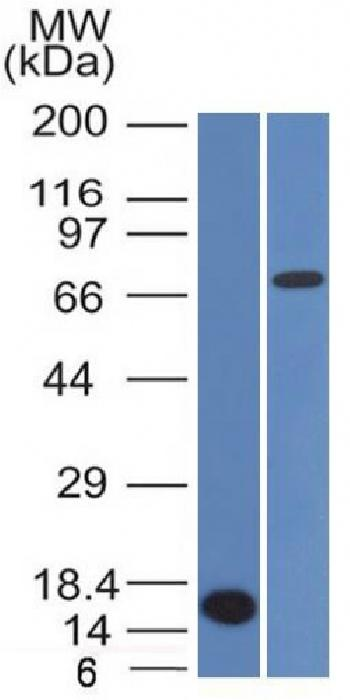 Anti-Bcl-6 (Follicular Lymphoma Marker) Monoclonal Antibody(Clone: BCL6/1475)