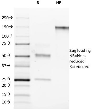 Anti-ROR-gamma / RORC (RAR-related Orphan Receptor C) Monoclonal Antibody(Clone: RORC/2942)