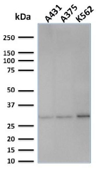Anti-Replication Protein A2 (RPA2) Monoclonal Antibody(Clone: SPM316)