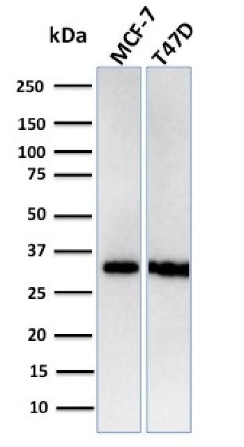Anti-Replication Protein A2 (RPA2) Monoclonal Antibody(Clone: RPA2/3140R)
