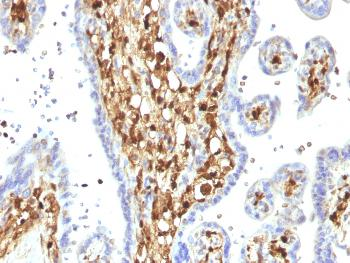 Anti-S100A4 / Metastasin / Calvasculin (Marker of Tumor Metastasis) Monoclonal Antibody(Clone: S100A4/1482)
