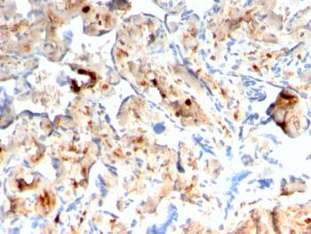 Anti-S100A4 / Metastasin / Calvasculin (Marker of Tumor Metastasis) Monoclonal Antibody(Clone: rS100A4/1481)