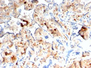 Anti-S100A4 / Metastasin / Calvasculin (Marker of Tumor Metastasis) Monoclonal Antibody(Clone: rS100A4/1481)