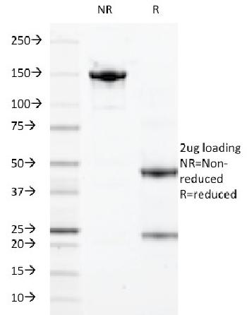 Anti-Calprotectin / MRP14 / S100A9 / Calgranulin B Monoclonal Antibody(Clone: 47-8D3; same as DF3973)