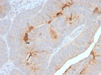 Anti-Serum Amyloid A Monoclonal Antibody(Clone: SAA/2868R)