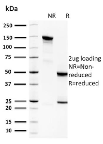Anti-Spermidine or Spermine N1-Acetyltransferase 1 Monoclonal Antibody(Clone: CPTC-SAT1-3)