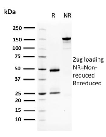 Anti-Squamous Cell Carcinoma Antigen 1 Monoclonal Antibody(Clone: CPTC-SERPINB3-2)
