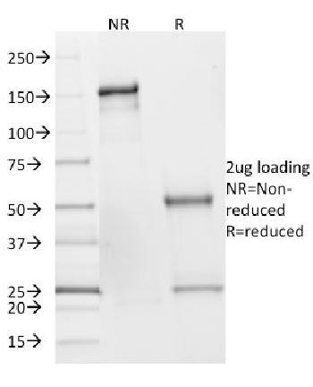 Anti-SDHB (Succinate Dehydrogenase B) (Pheochromocytoma Marker) Monoclonal Antibody(Clone: SDHB/2382)