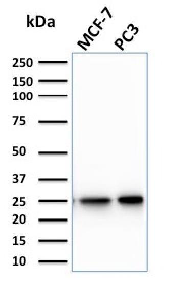 Anti-Calcineurin B homologous protein 2 / HCC Antigen 520 Monoclonal Antibody(Clone: CPTC-CHP2-1)