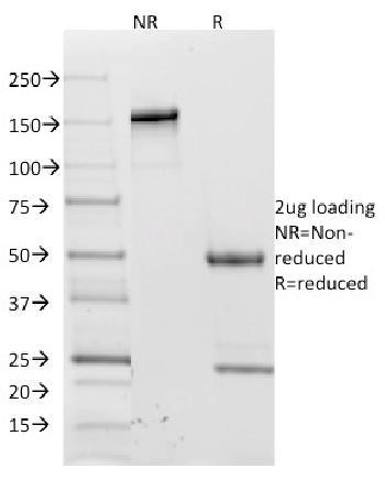 Anti-CD62L (L-Selectin) Monoclonal Antibody(Clone: CD62L/1588)