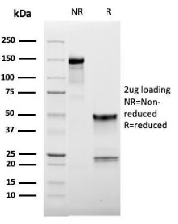Anti-CD62L (L-Selectin) Monoclonal Antibody(Clone: LAM1-116)