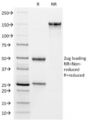 Anti-VISTA / GI24 (Negative Regulator of Immune Response) Monoclonal Antibody(Clone: VISTA/2864)