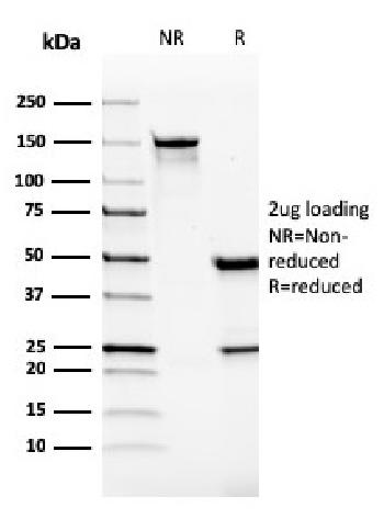 Anti-VISTA / GI24 (Negative Regulator of Immune Response) Monoclonal Antibody(Clone: VISTA/2865)