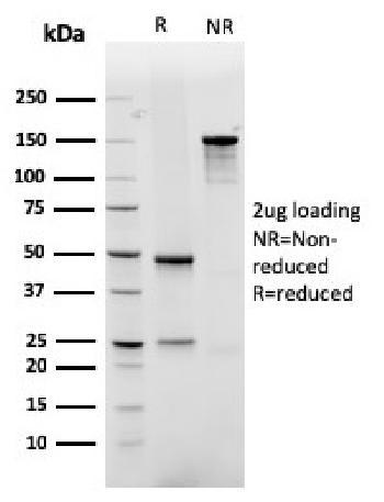 Anti-GLUT-1 (Tumor Progression and Mesothelioma Marker) Monoclonal Antibody(Clone: rGLUT1/2476)