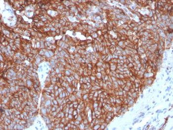 Anti-GLUT-1 (Tumor Progression and Mesothelioma Marker) Monoclonal Antibody(Clone: GLUT1/3132R)