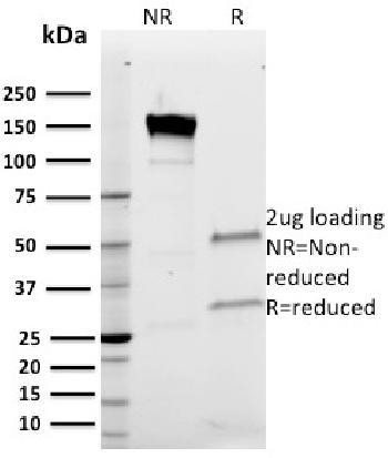 Anti-Band III Monoclonal Antibody(Clone: Q1/156)