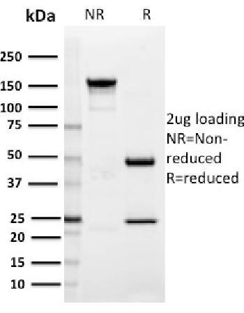 Anti-SIGLEC1 / CD169 / Sialoadhesin Monoclonal Antibody(Clone: HSn 7D2)