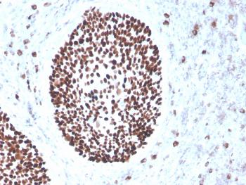 Anti-SOX2 (Embryonic Stem Cell Marker) Monoclonal Antibody(Clone: rSOX2/1791)