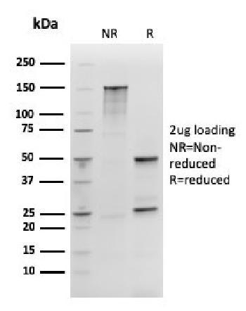 Anti-SOX2 (Embryonic Stem Cell Marker) Monoclonal Antibody(Clone: rSOX2/1792)