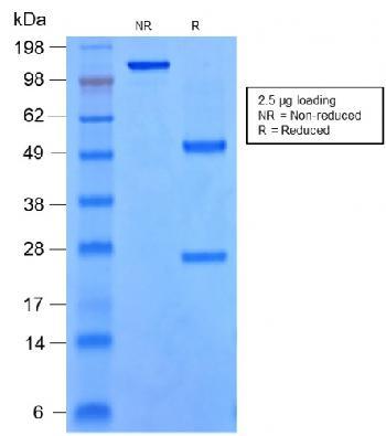 Anti-SOX9 / SRY-box 9 Monoclonal Antibody(Clone: rSOX9/2288)(Discontinued)