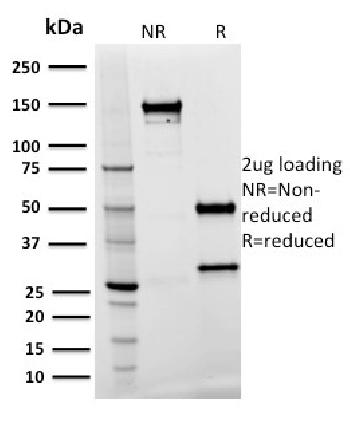 Anti-Spastin Monoclonal Antibody(Clone: Sp 3G11-1)