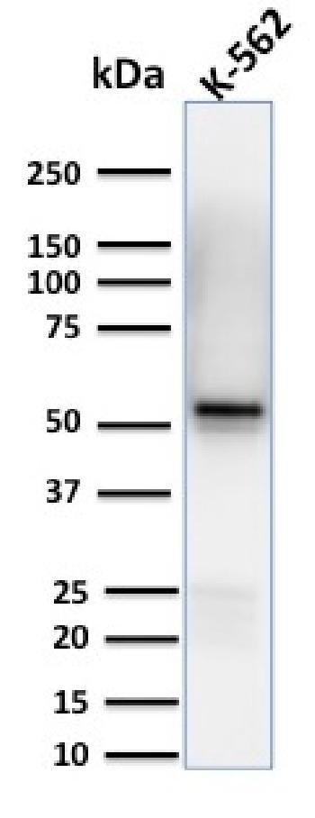 Anti-Spastin Monoclonal Antibody(Clone: Sp 6C6)