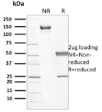 Anti-Spectrin beta I (SPTB) Monoclonal Antibody(Clone: RG/26)