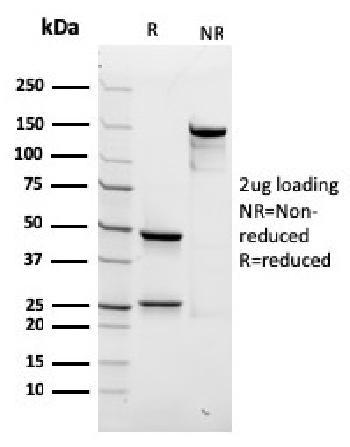 Anti-Spectrin beta III (SPTBN2) Monoclonal Antibody(Clone: rSPTBN2/1778)