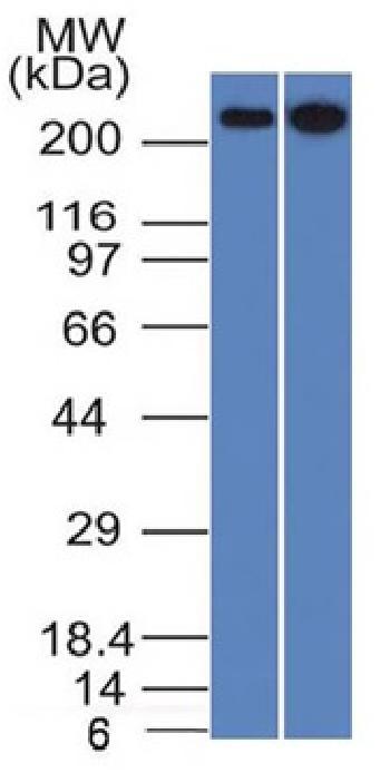 Anti-Spectrin beta III (SPTBN2) Monoclonal Antibody(Clone: SPTBN2/1582)