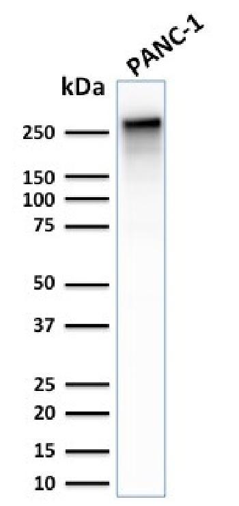 Anti-Spectrin beta III (SPTBN2) Monoclonal Antibody(Clone: SPTBN2/2887R)