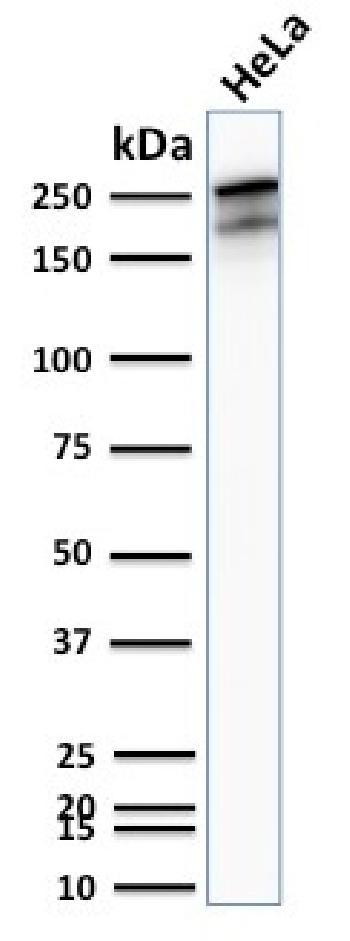 Anti-Spectrin beta III (SPTBN2) Monoclonal Antibody(Clone: SPTBN2/2894R)