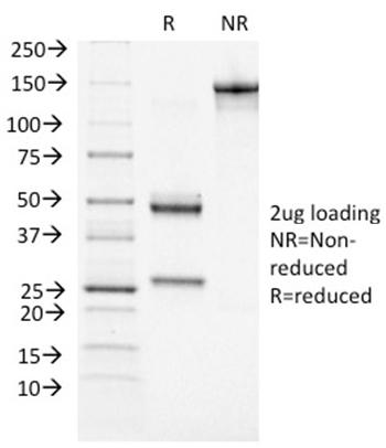 Anti-BRCA1 (Breast Marker) Monoclonal Antibody(Clone: BRCA1/1472)