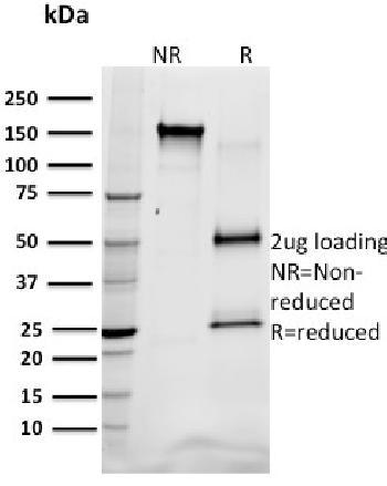Anti-SREBP1 Monoclonal Antibody(Clone: SREBP1/1578)