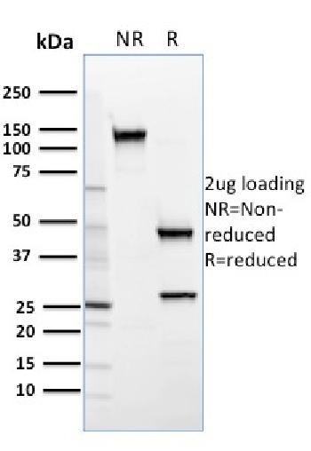 Anti-SREBP2 Monoclonal Antibody(Clone: SREBP2/1579)