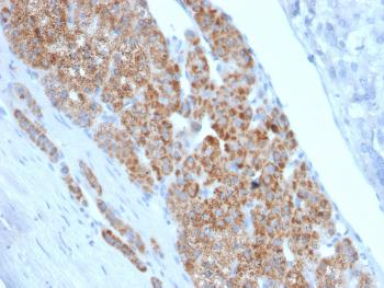 Anti-StAR (Steroidogenic Acute Regulator) (Leydig Cell Marker) Monoclonal Antibody(Clone: STAR/2140)