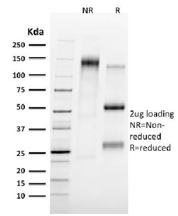 Anti-Tal1 Monoclonal Antibody(Clone: TAL1/2707)