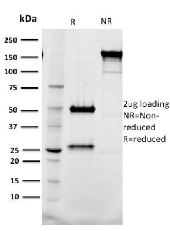 Anti-Tal1 Monoclonal Antibody(Clone: BTL73)