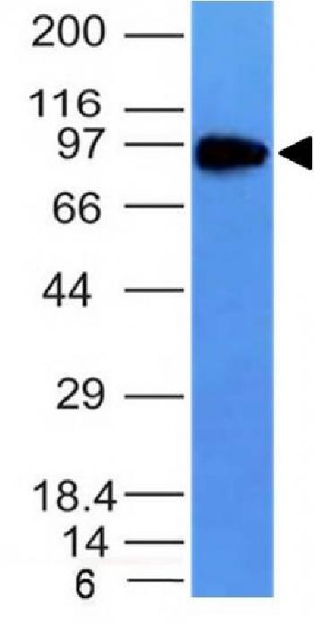 Anti-CD71 / Transferrin Receptor (TFRC) Monoclonal Antibody(Clone: TFRC/1149)