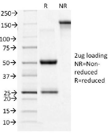 Anti-CD71 / Transferrin Receptor (TFRC) Monoclonal Antibody(Clone: TFRC/1396)