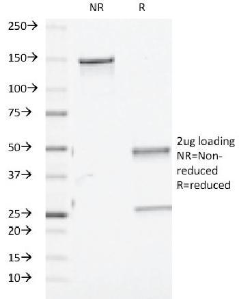 Anti-TGF-beta (Transforming Growth Factor beta) Monoclonal Antibody(Clone: TGFB/510)
