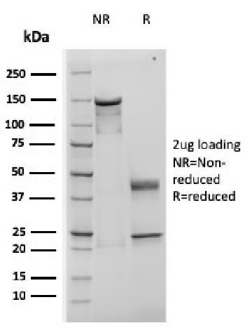 Anti-TIMP1 (Colorectal Cancer Biomarker / Marker of Lymph Node Metastasis) Monoclonal Antibody(Clone: rTIMP1/1710)
