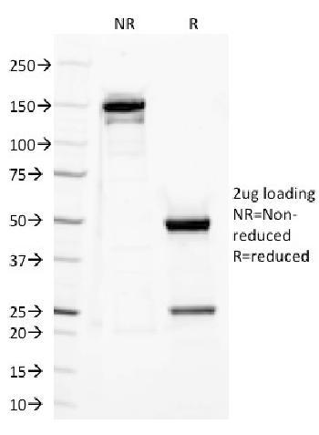 Anti-CD282 (Toll-Like Receptor 2) Monoclonal Antibody(Clone: TLR2/221)