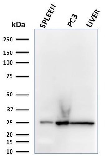Anti-C1QA / Complement C1q A-Chain Monoclonal Antibody(Clone: C1QA/2783)