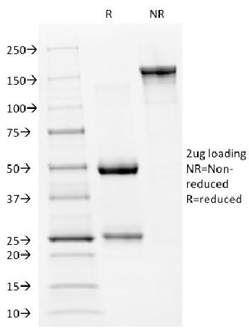Anti-p53 Tumor Suppressor Protein Monoclonal Antibody(Clone: PAb240)