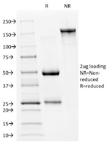 Anti-p53 Tumor Suppressor Protein Monoclonal Antibody(Clone: PAb240)