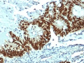 Anti-p53 Tumor Suppressor Protein Monoclonal Antibody(Clone: DO-1)