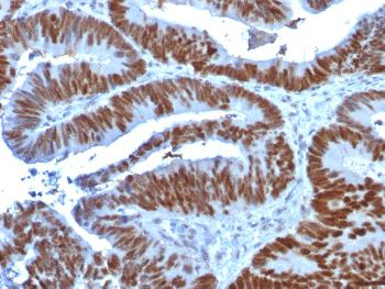 Anti-p53 Tumor Suppressor Protein Monoclonal Antibody(Clone: TP53/1739)