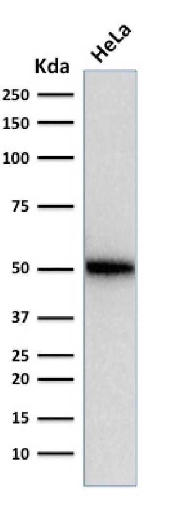 Anti-p53 Tumor Suppressor Protein Monoclonal Antibody(Clone: SPM514)
